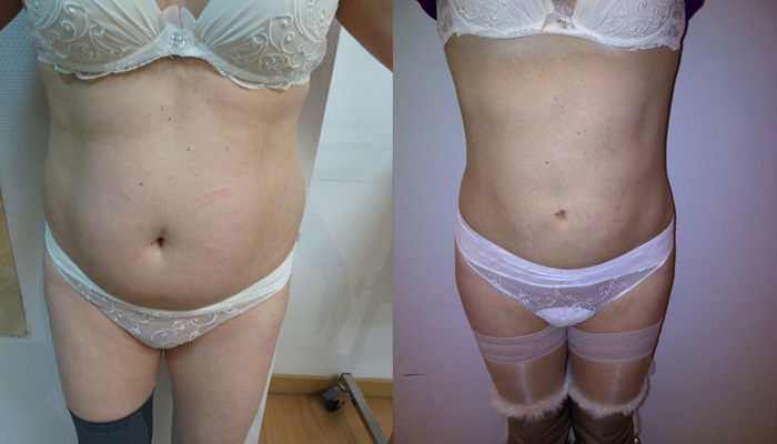 liposuccion et cellulite