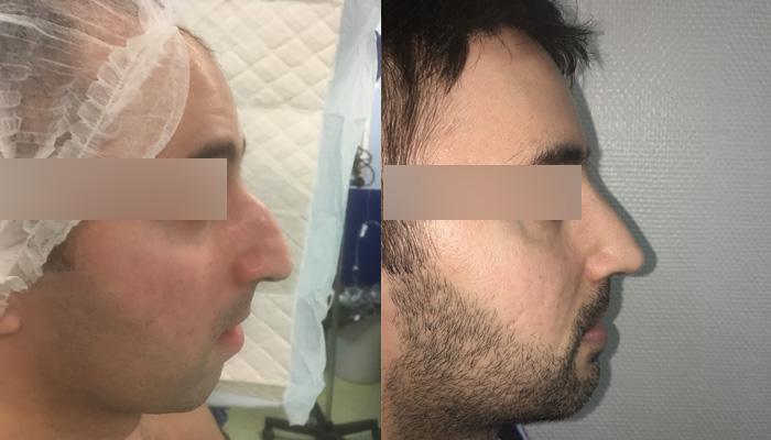 Rhinoseptoplastie et genioplastie d'augmentation par prothèse du menton en medpore (hydroxyapatite)