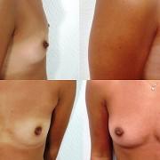 lipomodelage mammaire