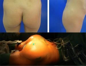 Augmentation des fesses - lipofilling des fesses - prothèses de fesse