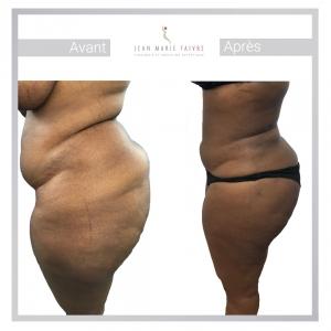 résultat avant-après liposuccion femme fesses