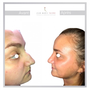 Rhinoplastie à Paris par le Dr Faivre chirurgien esthétique